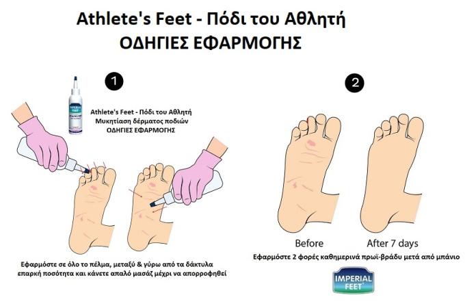 athletic_feet_fs01-11